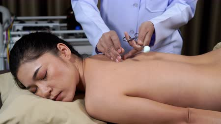acupressure : young woman undergoing acupuncture treatment on back