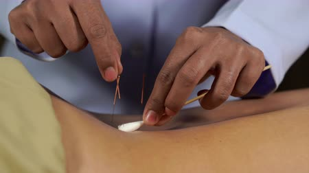 acupressure : close up woman undergoing acupuncture treatment on back Stock Footage