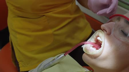 brushing : Close Up Female Hands Professional Doctor Stomatologist at Work. Person Undergoes a Medical Examination and Treatment of the Oral Cavity at the Dentist.