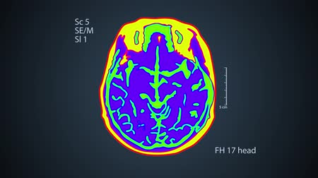 Brain MRT scan. One view on the screen. 4k medical colorful background