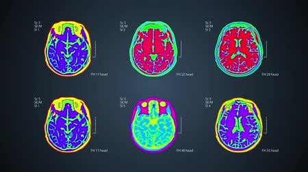 Brain MRT scan. 6 views on one screen. 4k medical colorful background Wideo