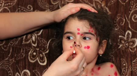 chickenpox : Beautiful little girl has chicken pox. Childs face close up. Female hands put medicine on face