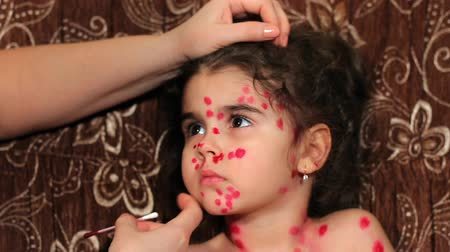 blemished : Beautiful little girl has chicken pox. Childs face close up. Female hands put medicine on face
