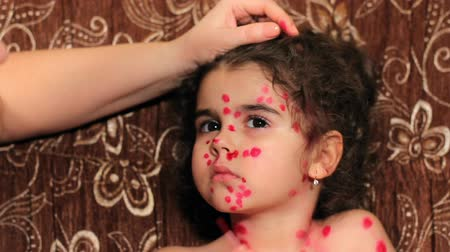 pus : Beautiful little girl has chicken pox. Childs face close up. Female hands put medicine on face
