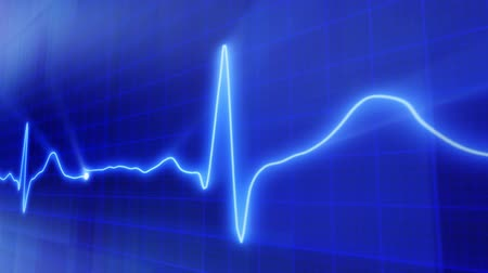 stroke : seamless loop blue background EKG electrocardiogram pulse real waveform Stock mozgókép