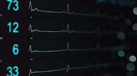 Medical monitor with blue lines of ECG. Abstract healthcare concept. Computer generated seamless loop animation with DOF 4k UHD (3840x2160)