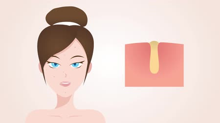 melanin : uv protection graphic animation , women face and ultraviolet comparison Stock Footage