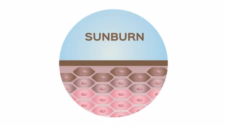 Вера : healthy skin , sunburn , old skin and acne graphic animation  text