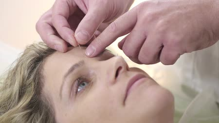 akupunktura : Shot of Facial Acupuncture Treatment In a Clinic Wideo