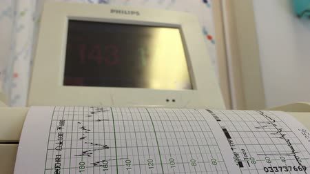 maternity hospital : Shot of Hospital monitor aith paper output Stock Footage