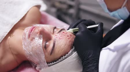 mezoterapia : Closeup view of a professional comsetologist in black gloves making multiple injections in womans face skin during mesotherapy. Biorevitalization and face lifting, non-surgical medicine treatment Wideo