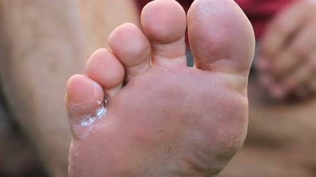 mal cheiroso : A man deals with his painful athletes foot fungal infection by using a special ointment treatment. Stock Footage