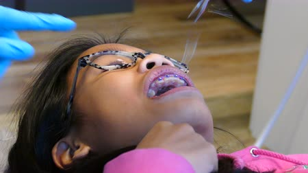 ortodonta : A young teenage Asian girl visits the orthodontist for her regular check up and adjustment appointment in Vancouver, BC.