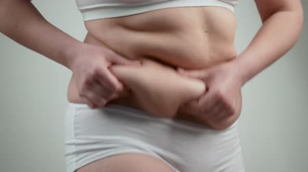 целлюлит : Woman in white underwear holds her belly fat.