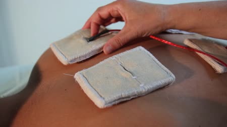 direct current : Reflexotherapist fixes electrodes on the patients back for electrostimulation.close-up Stock Footage
