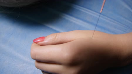 trigger : Dry needling.Acupuncture.Close-up of a needle sticking into a patients wrist.Traditional Chinese medicine.Trigger point therapy Stock Footage