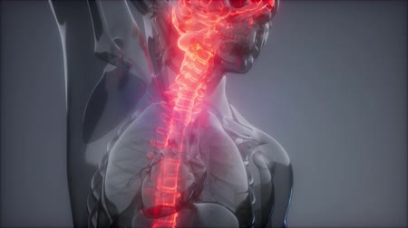 ból pleców : Head Pain Headache - Male Hurt Backbone
