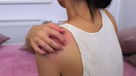 dermatologia : Woman sitting in bed and scratching her shoulder Stock Footage