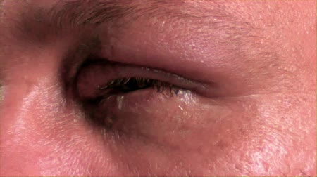 Łzy : Man with Infected eye uncomfortable side, 4K Wideo