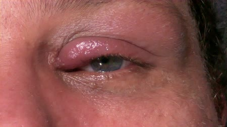sty : Man with  Infected eye looking uncomfortable 4K