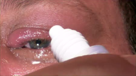 sty : Man putting eye drops in infected eye