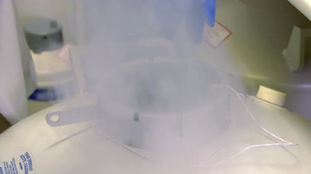 the doctor freezes biological material with liquid nitrogen
