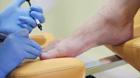 soyulması : hand physician Podiatry titanium bonded thread to the nail of male patient in the beauty salon, close-up