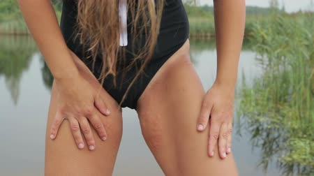 itchy : Itchy, allergic reaction, rash with blisters on the girls thigh, the girl is dressed in a black swimsuit and stands on the background of the lake, close-up Stock Footage