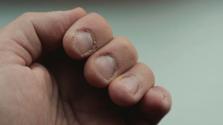 gnaw : Close-up of a human hand with bitten nails: the concept of self-doubt, fear, excitement and anxiety