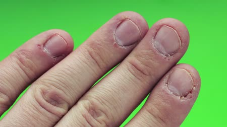 yara : Ugly pogryzannye fingers,biting nails, cuticles, wounds on the fingers. Nail-biting habit. The concept of onychophagy