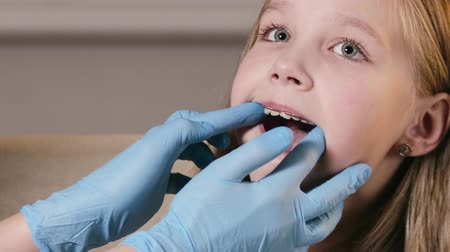 aparelho : Orthodontist inserts a plate to align the teeth and correct the bite of the child in the clinic. A doctor in blue protective gloves puts a device in a cute girls mouth