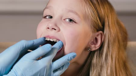 düzeltme : Portrait of a little girl who has a professional dentist insert an orthodontic plate to correct her bite. Healthy, beautiful smile, childrens dentistry
