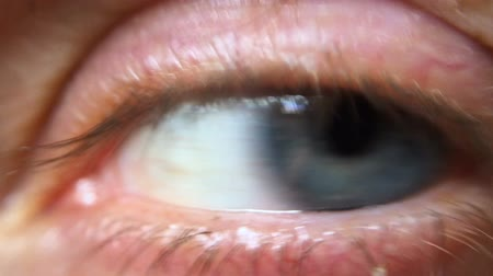 irys : Extreme close up of a blue eye reflecting trees outdoors, moving around quickly and opening wide for the camera Wideo
