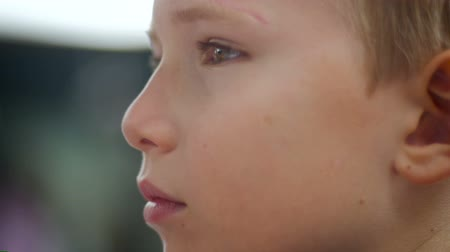 concentrando : Close up of a young boy with a small scar above his left eye as he looks around - slow motion sideview Vídeos
