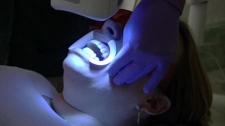 protective eyewear : Teeth Whitening Beam Machine (HD). Real Teeth whitening session with high energy beam of light and chemicals applied to whiten teeth in one session. Mouth guard and goggles used.