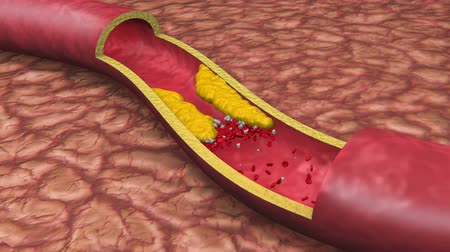 stroke : Clogged Artery Low Angle Digital Animation with platelets and cholesterol plaque.