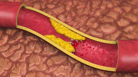 erythrocyte : Artery With Clog Animation (HD). Clogged artery shown with a cut out section displaying fat deposits and forming a clot. White Platelets in Bloodstream.
