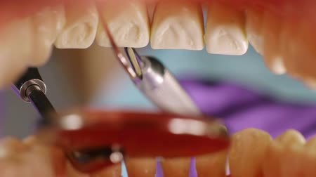 limpeza : Teeth Inside Mouth Cleanup (HD). Dentist cleaning teeth Inside mouth with hook remover tool and mirror.