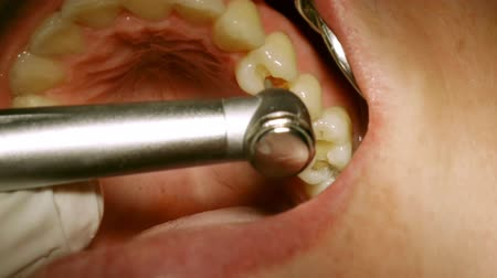 stomatologia : Dentist Drilling Cavities In Molars Wideo
