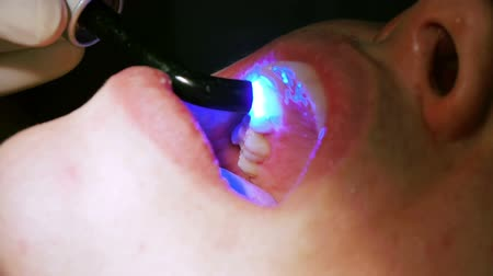 implantaat : Drogen Inlays met UV licht in tandheelkundige Procedure genezen Stockvideo