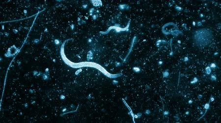 mikroskop : Three Nematode Worms Seen In Dark Field Microscope With Blue Filter 200x