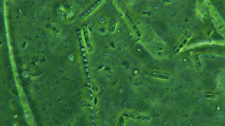 mikroskopický : Bacteria Colony On Moss Plants Seen Feeding And Swimming with Protozoa