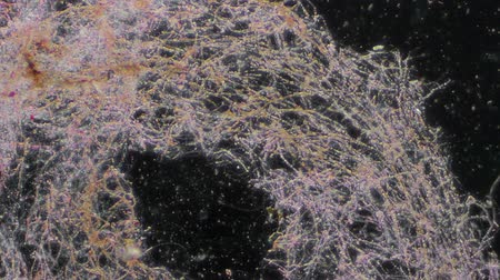 kalıp : Mold Under Microscope 100x Magnification