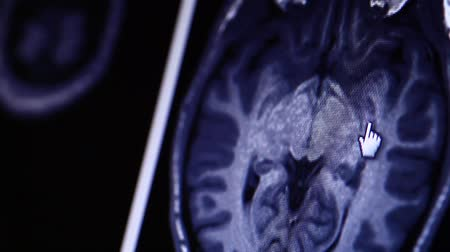 brain : MRI scan on computer monitor Stock Footage