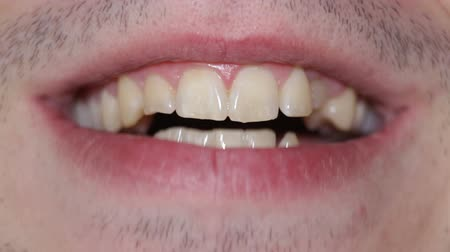 ağız : Closeup of young male mouth and teeth.