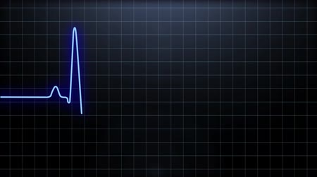 Heartbeat pulse in blue,