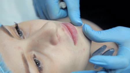 alargamento : The beautician smoothes botox in the lips of a young girl after the injection. Lip augmentation procedure.