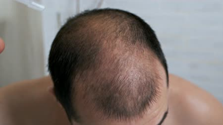 Worrying about hair loss.Slow motion a balding man in front of a mirror takes care of his hair, uses a means for hair growth in case of hair loss.