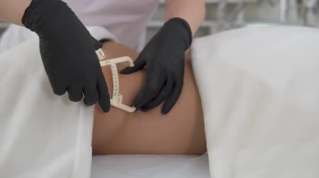 cryolipolysis. preparation for the procedure, the measurement of a layer of subcutaneous fat with a special ruler Wideo