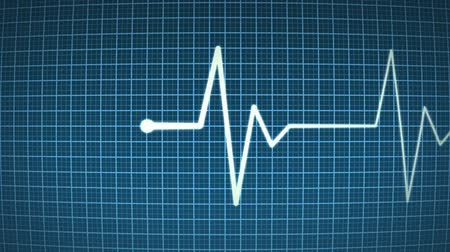 puls : Animated cardiogram